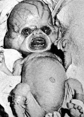 alien_baby