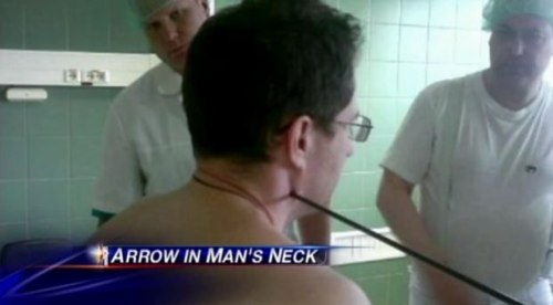 arrow in the neck.jpg